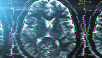 Commonly prescribed anticholinergic drugs could raise risk for dementia, study says